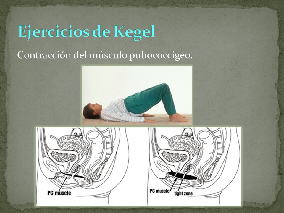 Ejercicios de Kegel Contracción del músculo pubococcígeo.