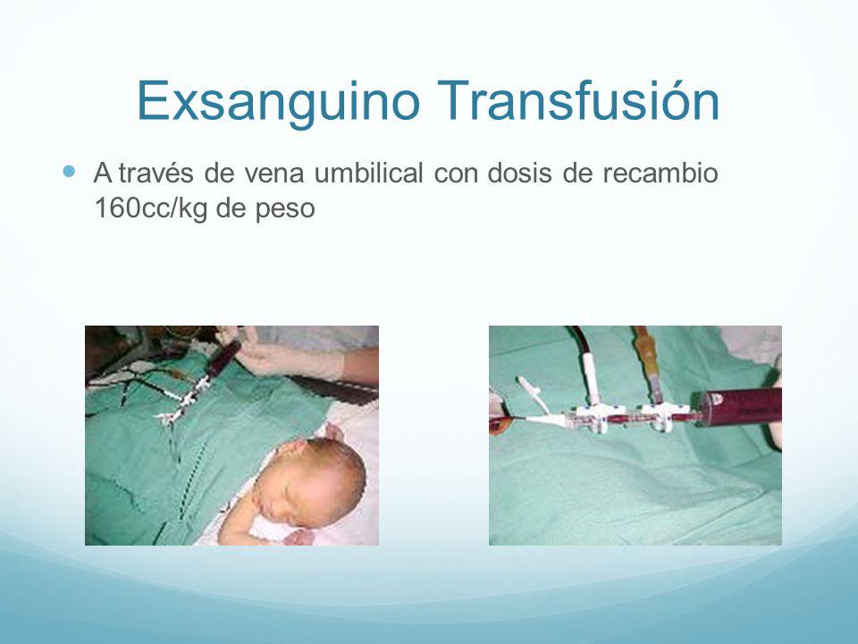 Exsanguino Transfusión