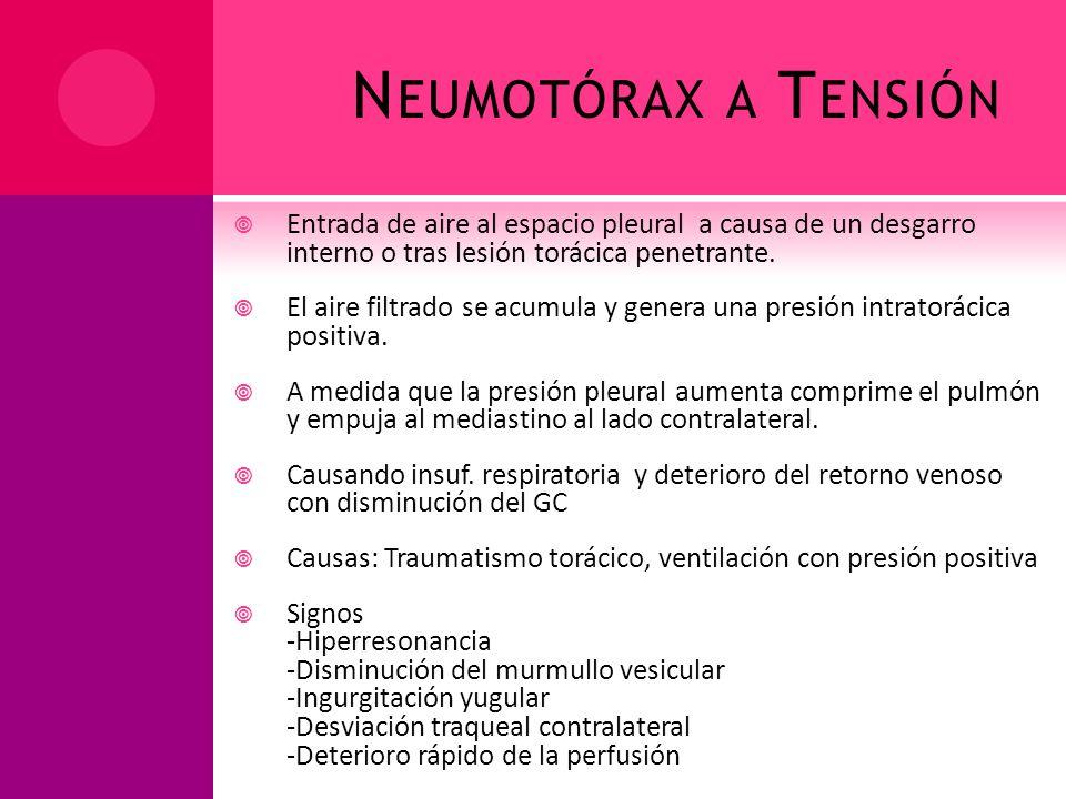 Neumotórax a Tensión Entrada de aire al espacio pleural a causa de un desgarro interno o tras lesión torácica penetrante.