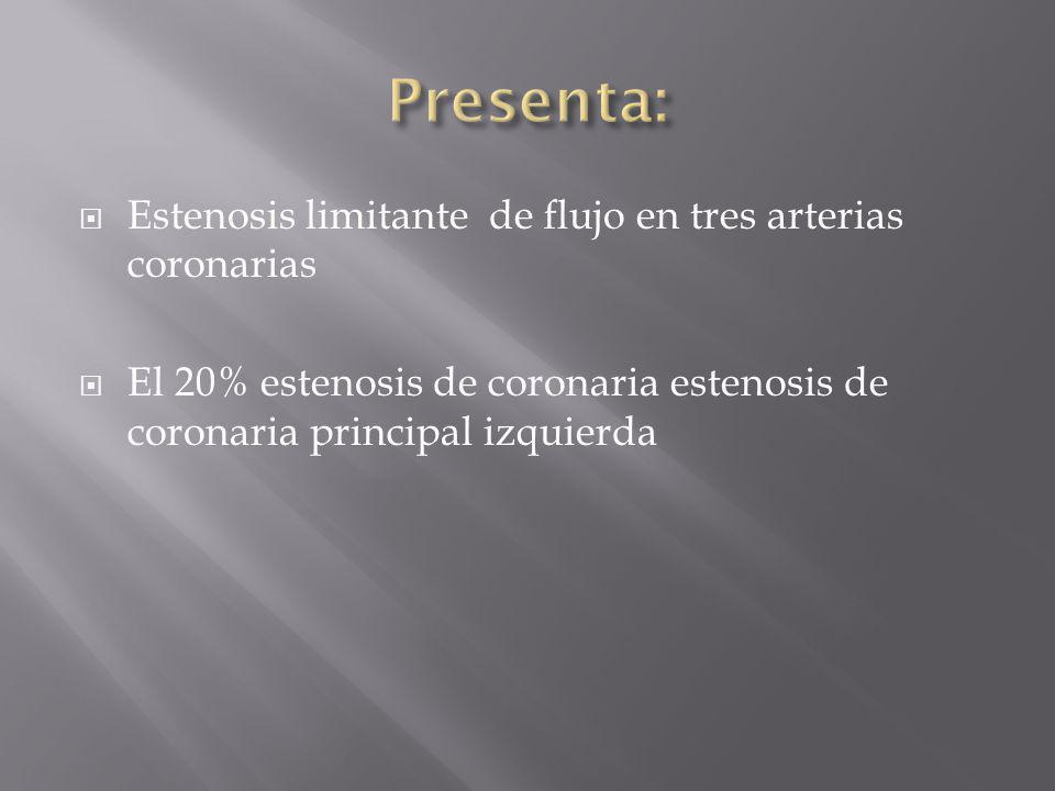 Presenta: Estenosis limitante de flujo en tres arterias coronarias