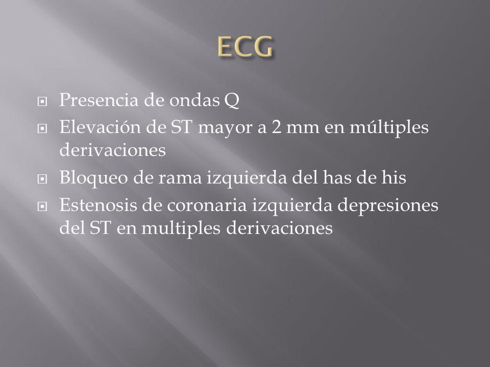ECG Presencia de ondas Q