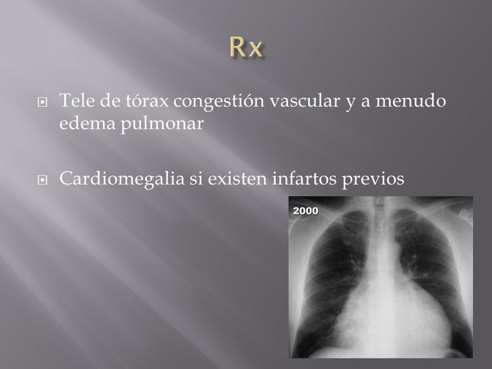 Rx Tele de tórax congestión vascular y a menudo edema pulmonar