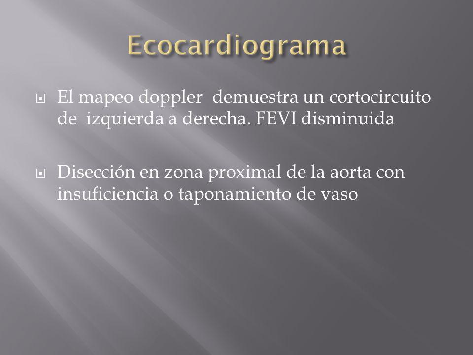 Ecocardiograma El mapeo doppler demuestra un cortocircuito de izquierda a derecha. FEVI disminuida.
