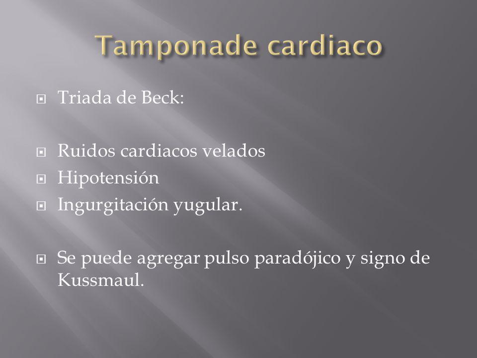 Tamponade cardiaco Triada de Beck: Ruidos cardiacos velados