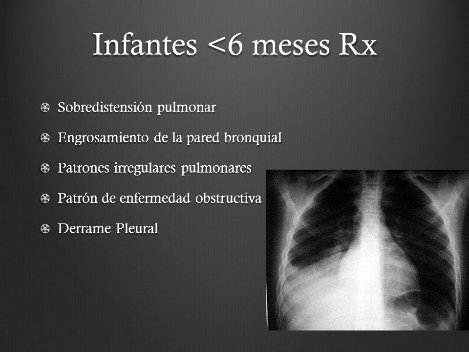Infantes <6 meses Rx Sobredistensión pulmonar