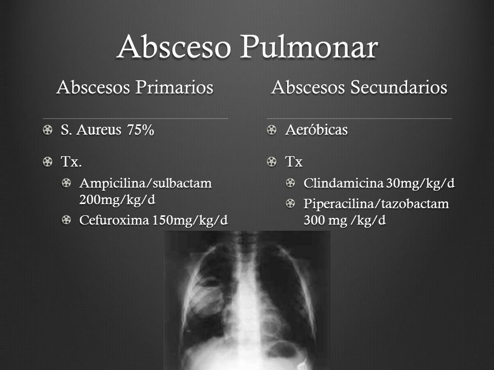 Absceso Pulmonar Abscesos Primarios Abscesos Secundarios S. Aureus 75%