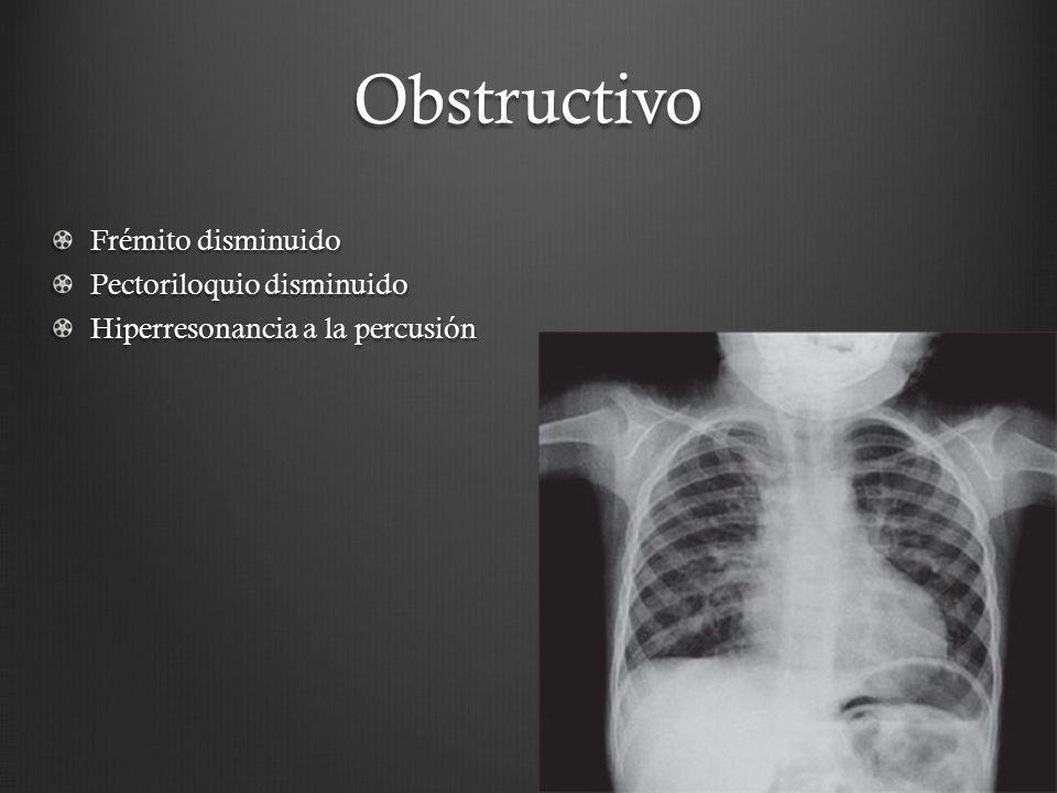 Obstructivo Frémito disminuido Pectoriloquio disminuido
