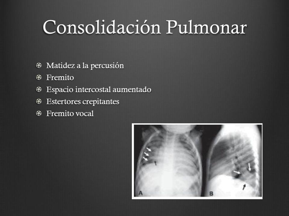 Consolidación Pulmonar
