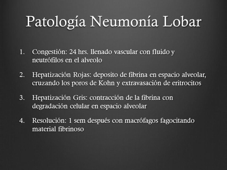 Patología Neumonía Lobar