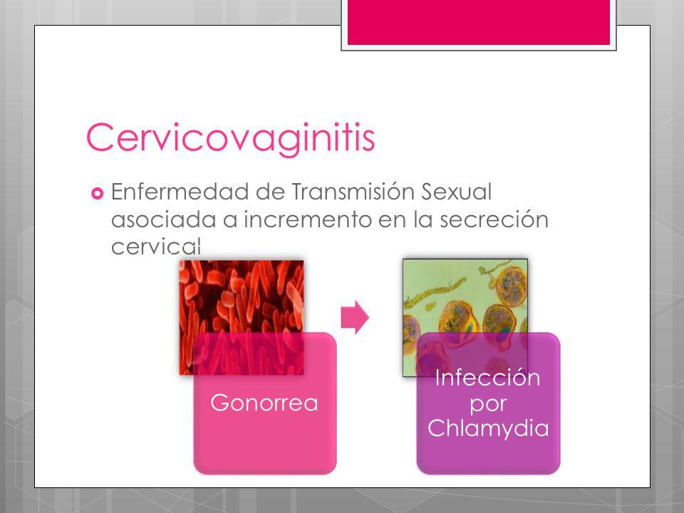 Infección por Chlamydia