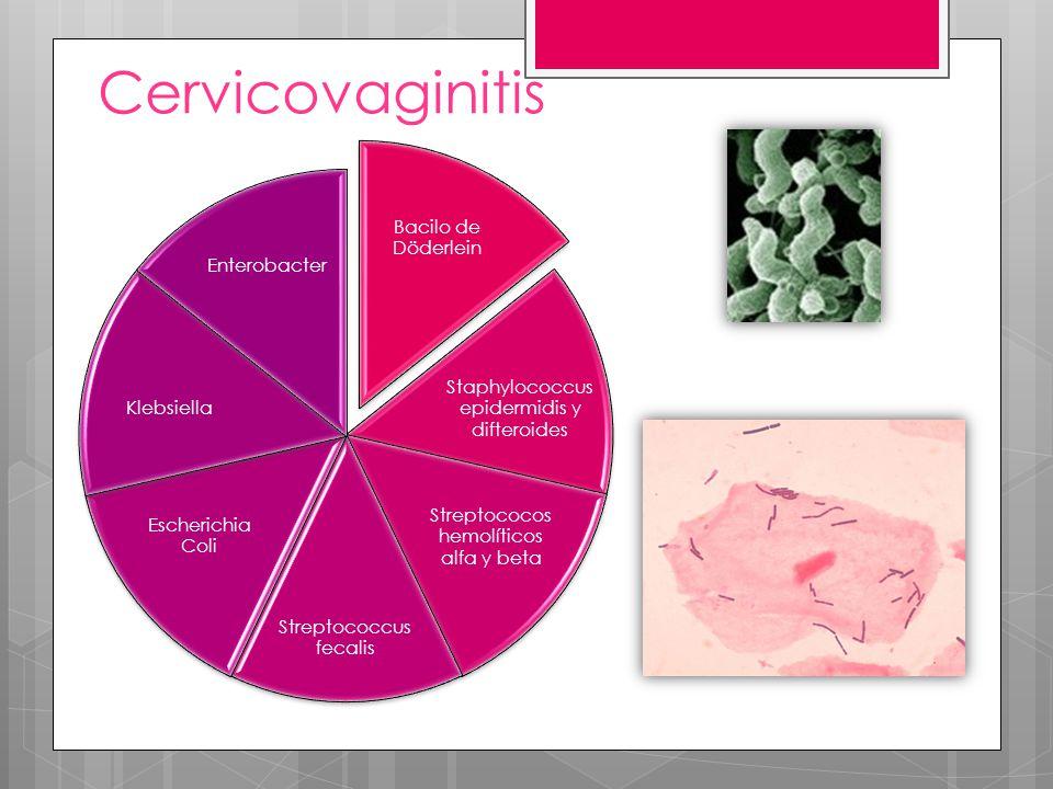 Cervicovaginitis Bacilo de Döderlein Enterobacter