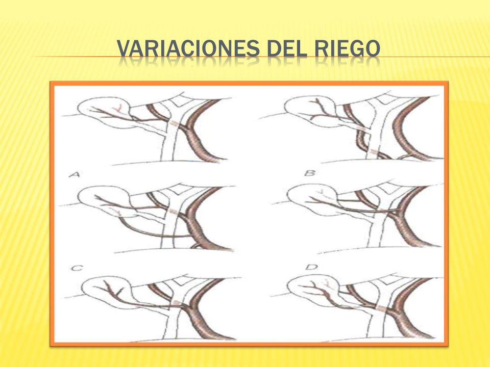 VARIACIONES DEL RIEGO