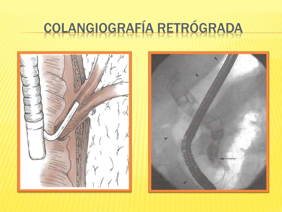 COLANGIOGRAFÍA RETRÓGRADA