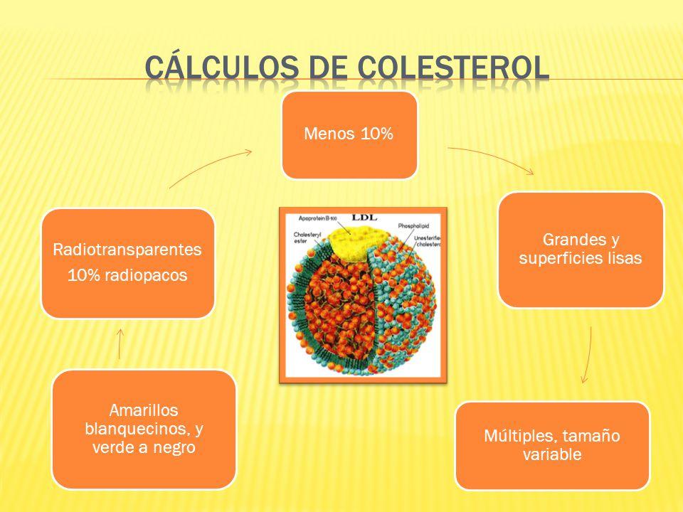 Cálculos de colesterol