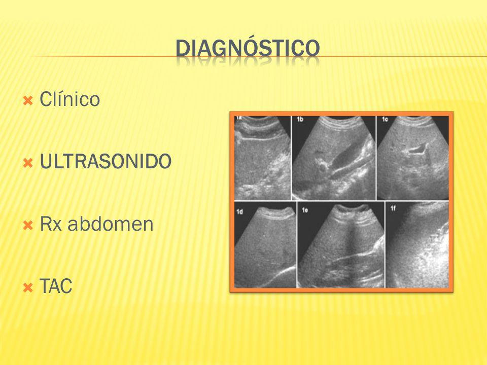 DIAGNÓSTICO Clínico ULTRASONIDO Rx abdomen TAC