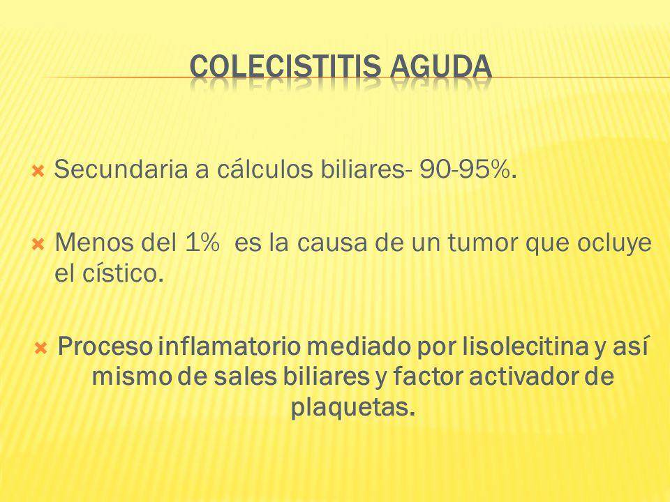 COLECISTITIS AGUDA Secundaria a cálculos biliares- 90-95%.
