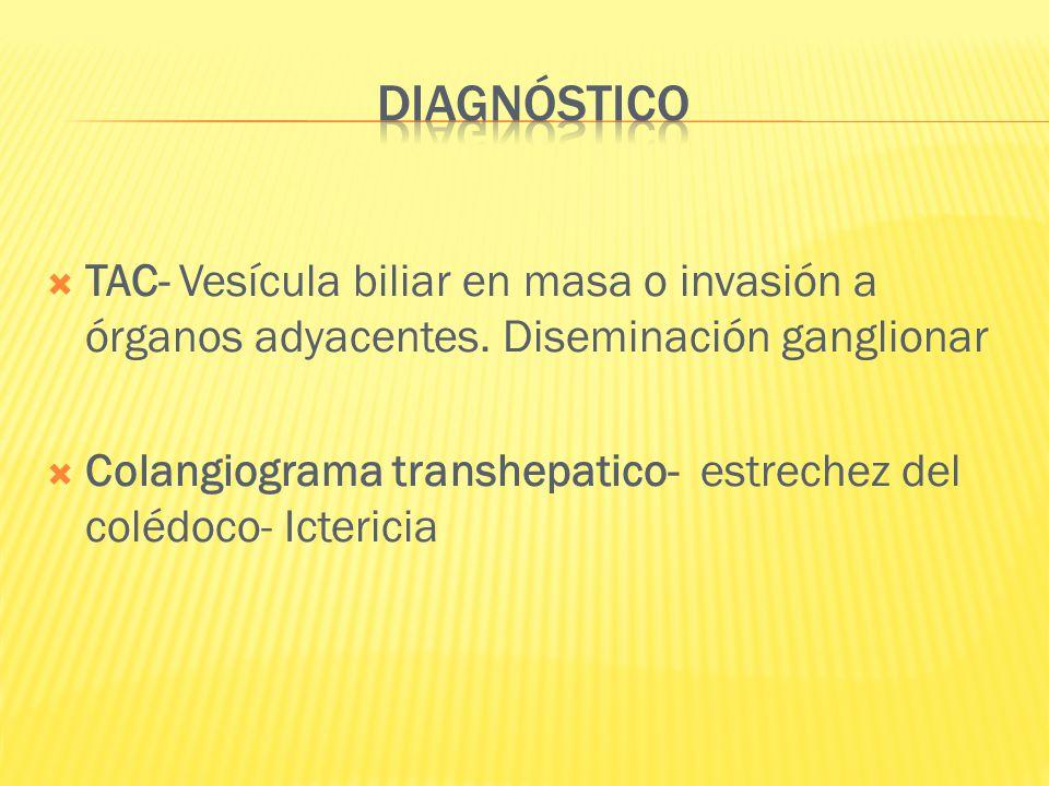 DIAGNÓSTICO TAC- Vesícula biliar en masa o invasión a órganos adyacentes. Diseminación ganglionar.