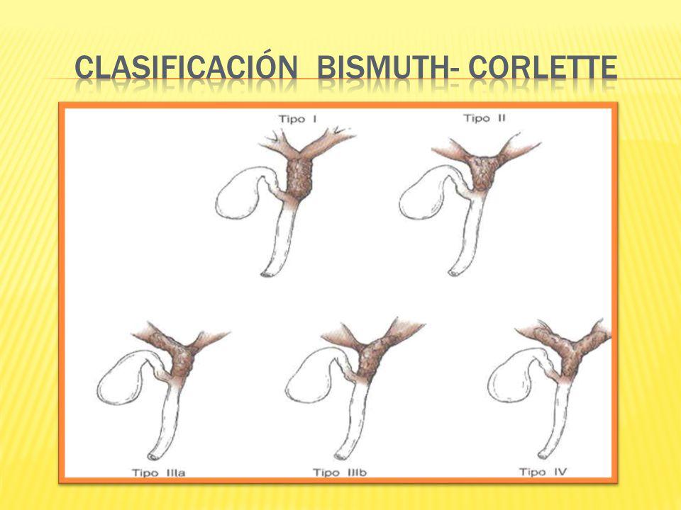 CLASIFICACIÓN BISMUTH- CORLETTE