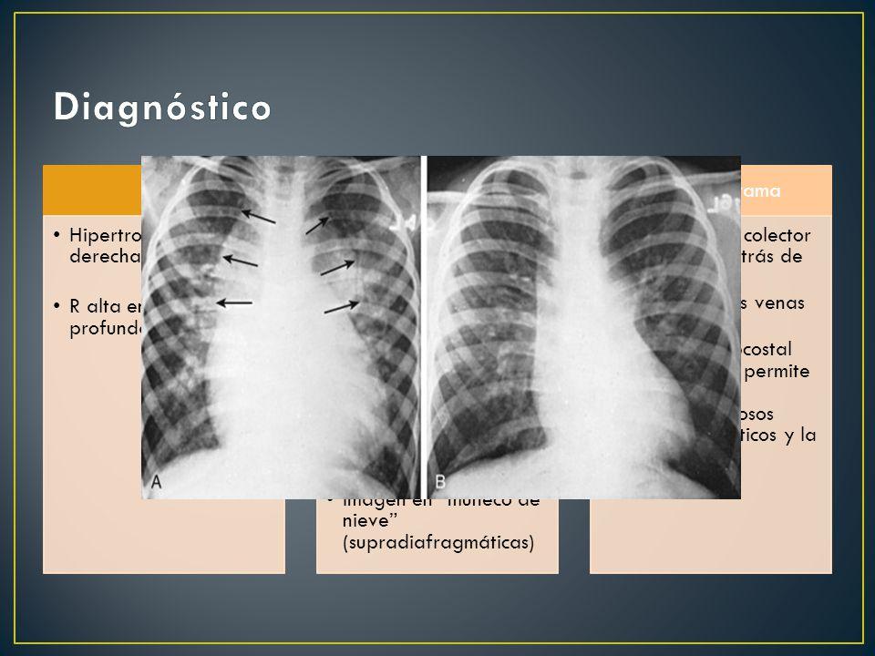Diagnóstico ECG Hipertrofia ventricular derecha