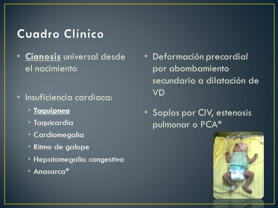 Cuadro Clínico Cianosis universal desde el nacimiento