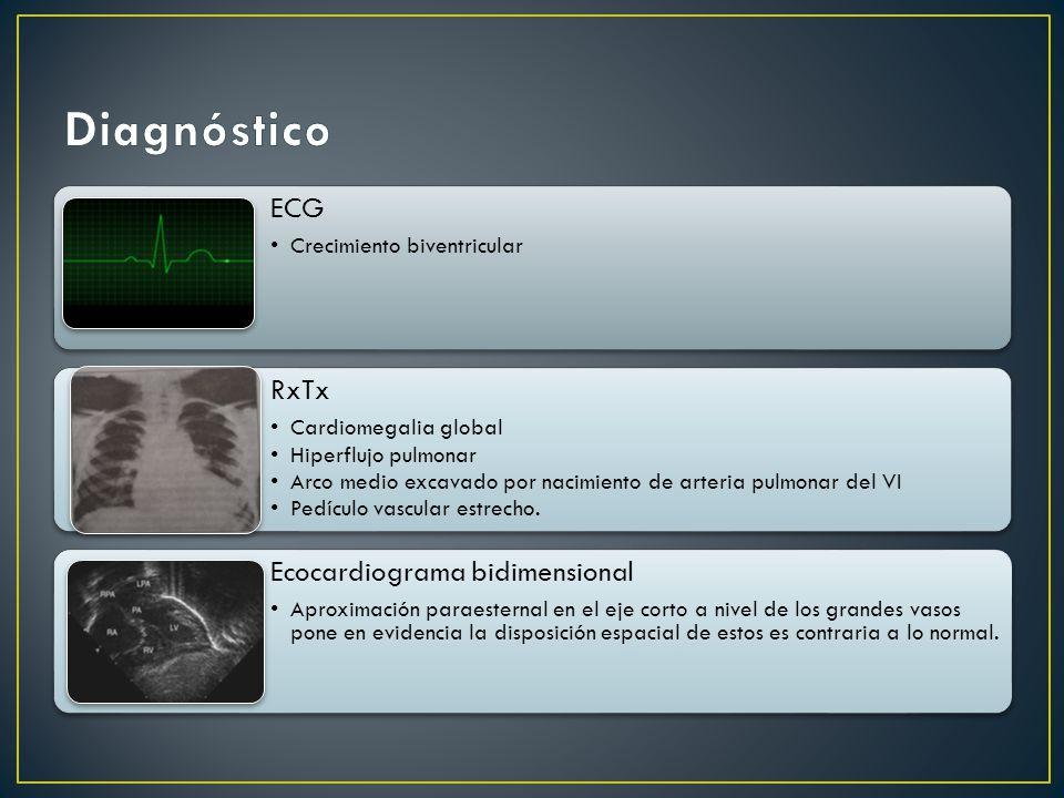 Diagnóstico ECG RxTx Ecocardiograma bidimensional