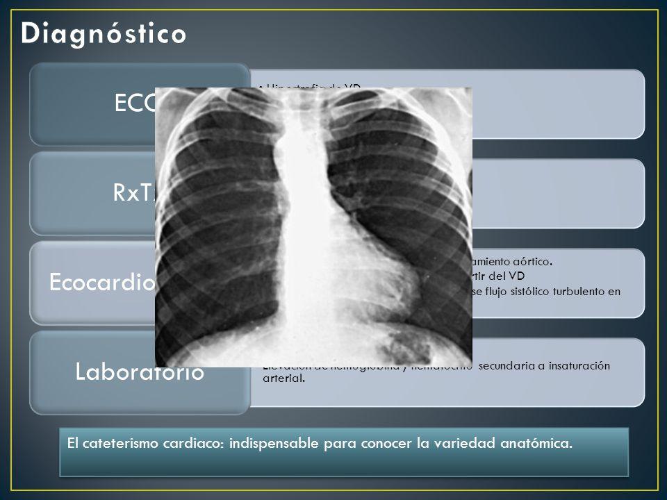 Diagnóstico ECG. Hipertrofia de VD. Sobrecarga sistólica. Crecimiento de AD. RxTx. Sin cardiomegalia.