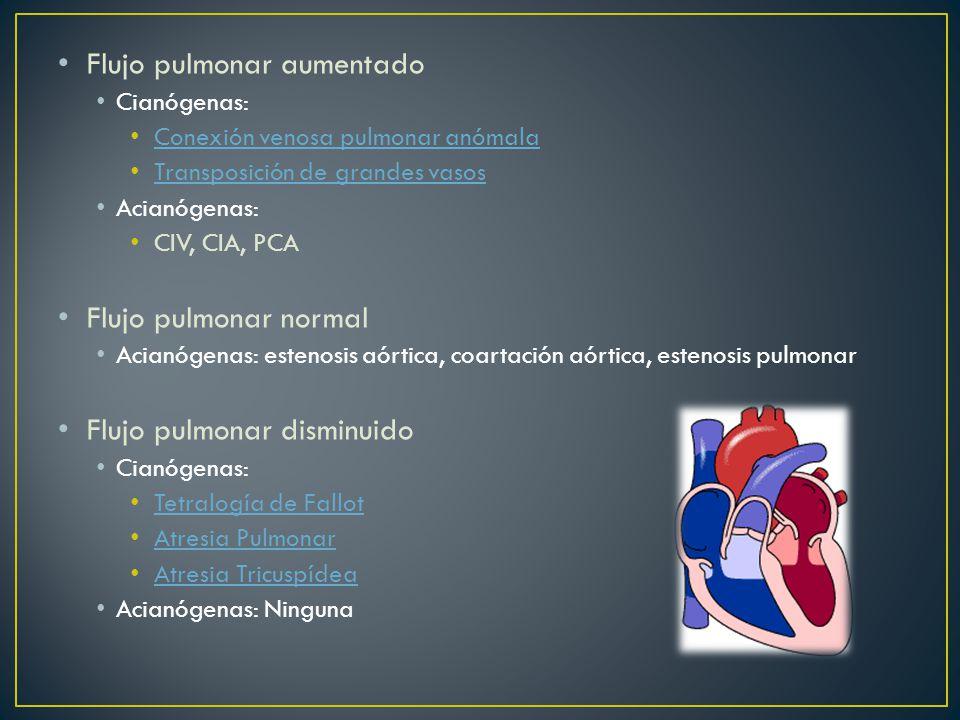 Flujo pulmonar aumentado