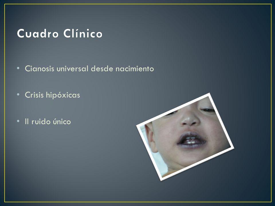 Cuadro Clínico Cianosis universal desde nacimiento Crisis hipóxicas