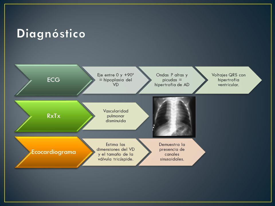 Diagnóstico ECG RxTx Ecocardiograma