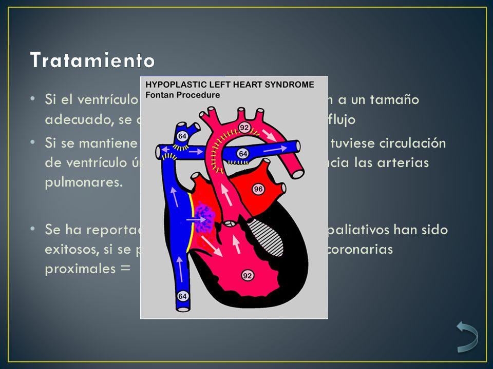 Tratamiento Si el ventrículo y la válvula tricúspide crecen a un tamaño adecuado, se cierran todos los cambios de flujo.