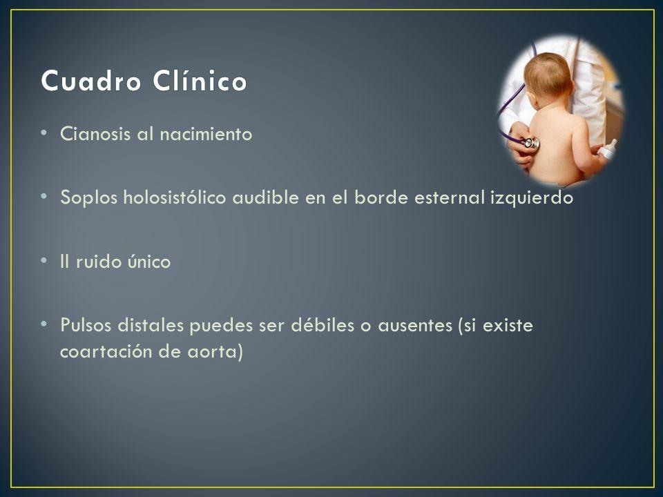 Cuadro Clínico Cianosis al nacimiento