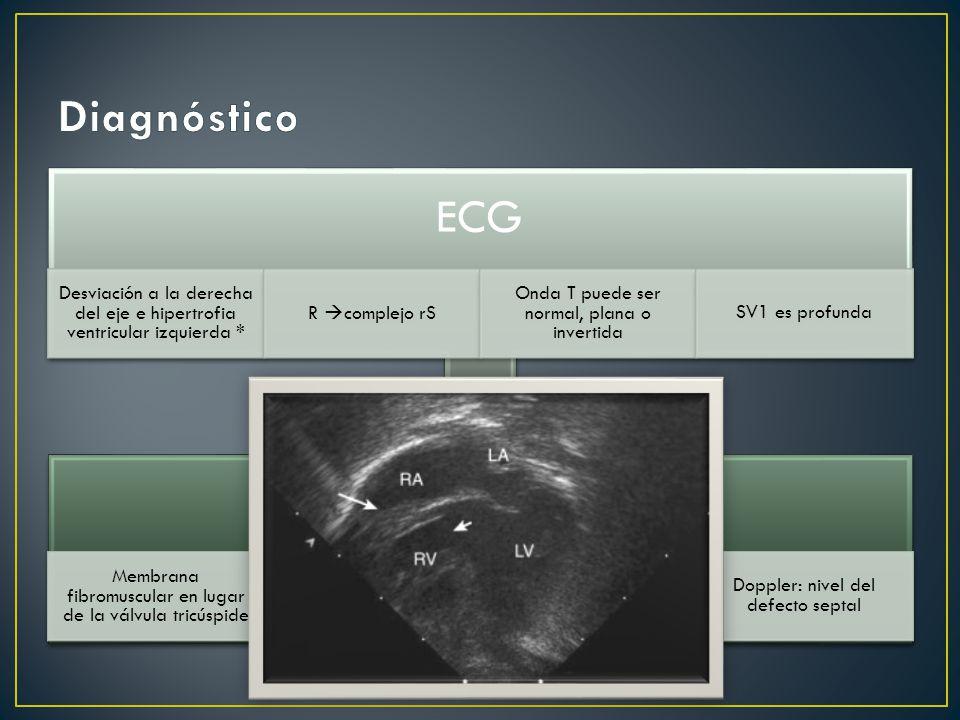 Diagnóstico ECG. Desviación a la derecha del eje e hipertrofia ventricular izquierda * R complejo rS.