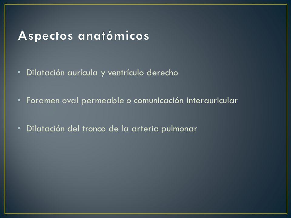 Aspectos anatómicos Dilatación aurícula y ventrículo derecho