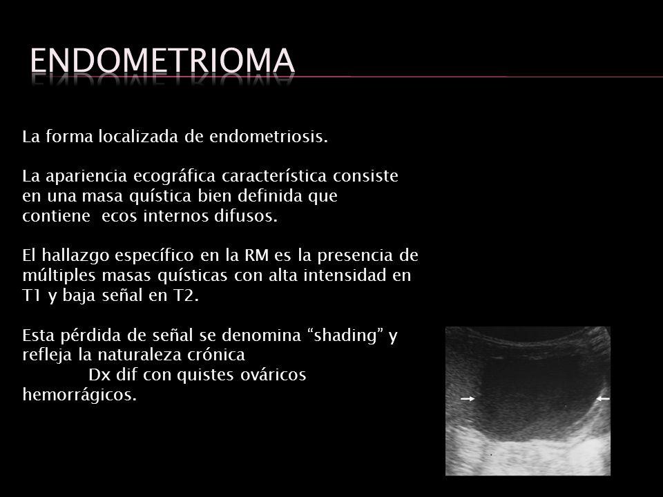 endometrioma La forma localizada de endometriosis.