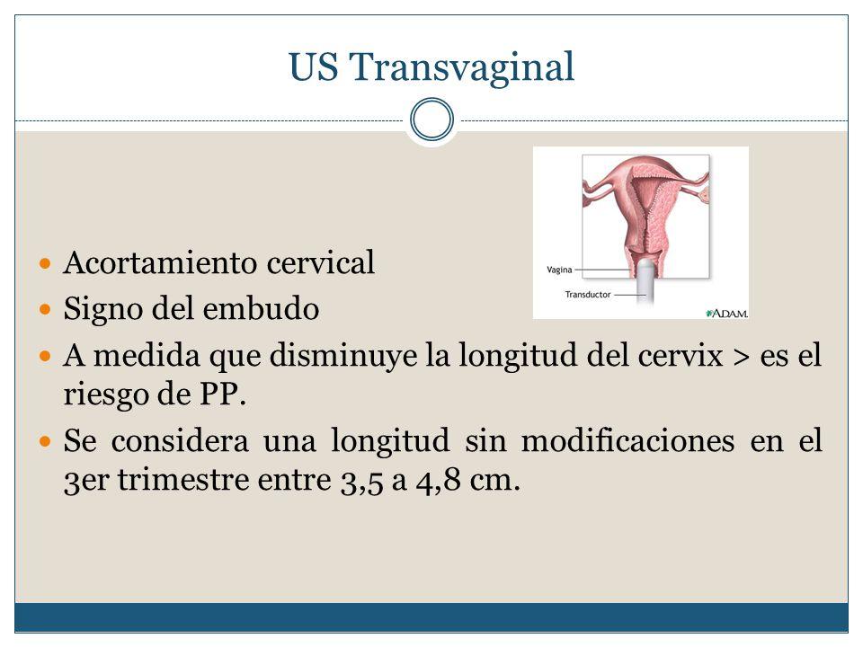 US Transvaginal Acortamiento cervical Signo del embudo