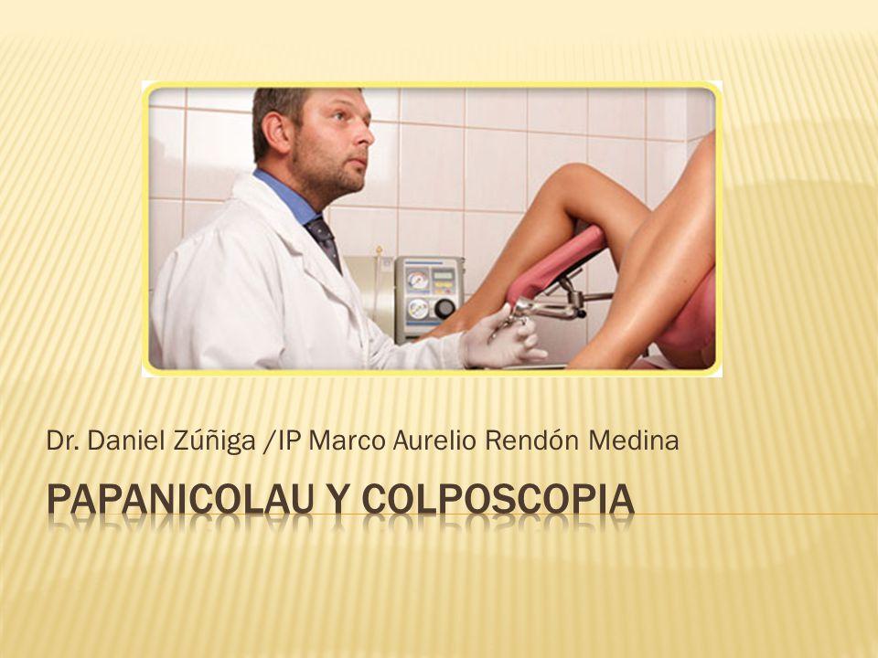 Papanicolau Y Colposcopia