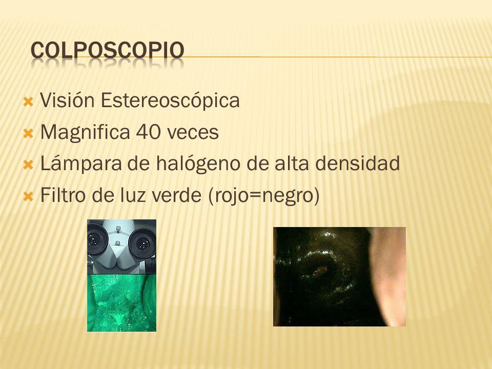 Colposcopio Visión Estereoscópica Magnifica 40 veces