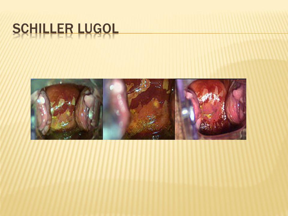 Schiller lugol