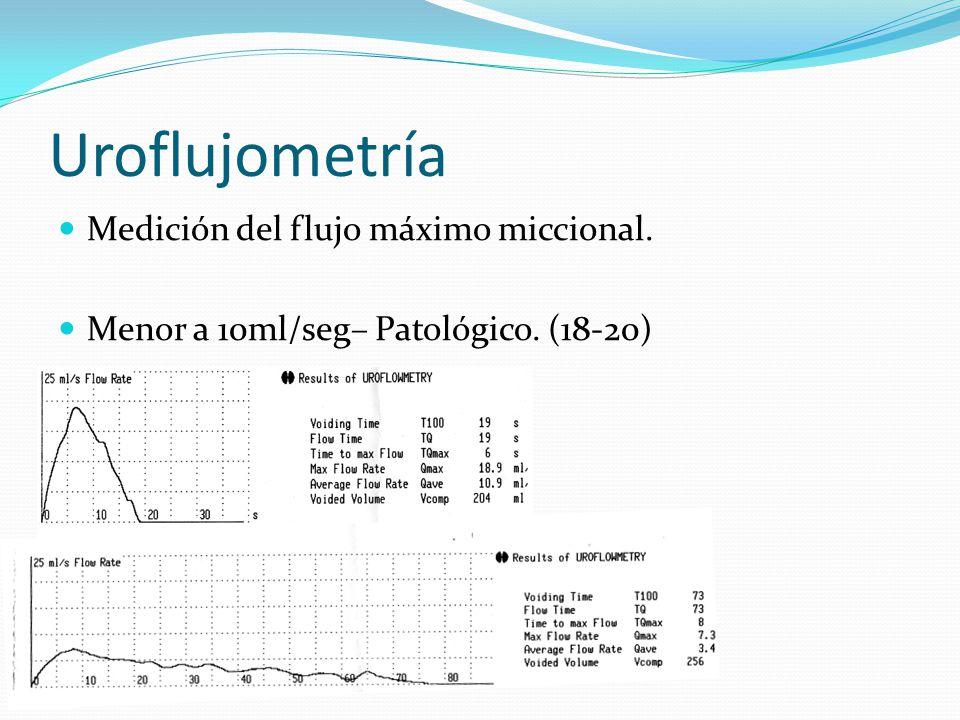 Uroflujometría Medición del flujo máximo miccional.