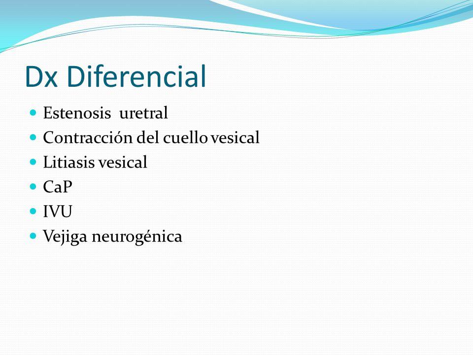 Dx Diferencial Estenosis uretral Contracción del cuello vesical