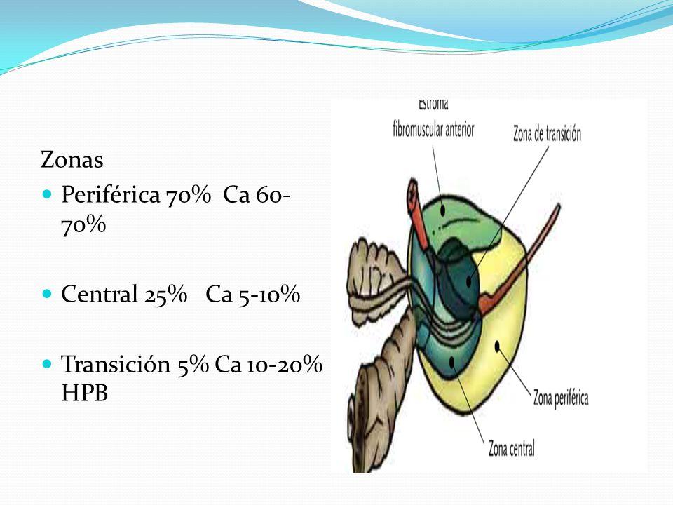 Zonas Periférica 70% Ca 60-70% Central 25% Ca 5-10% Transición 5% Ca 10-20% HPB