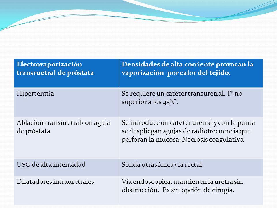 Electrovaporización transruetral de próstata