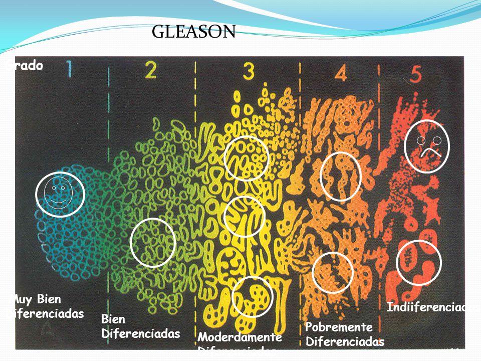 GLEASON Grado Muy Bien Diferenciadas Indiiferenciadas