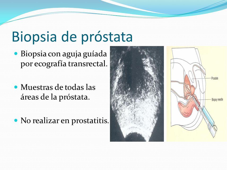 Biopsia de próstata Biopsia con aguja guíada por ecografía transrectal. Muestras de todas las áreas de la próstata.