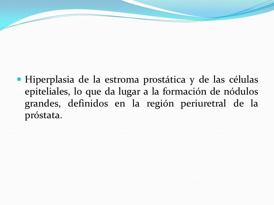 Hiperplasia de la estroma prostática y de las células epiteliales, lo que da lugar a la formación de nódulos grandes, definidos en la región periuretral de la próstata.