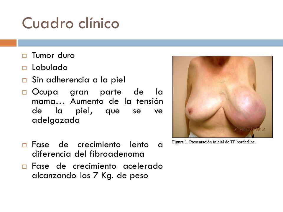 Cuadro clínico Tumor duro Lobulado Sin adherencia a la piel