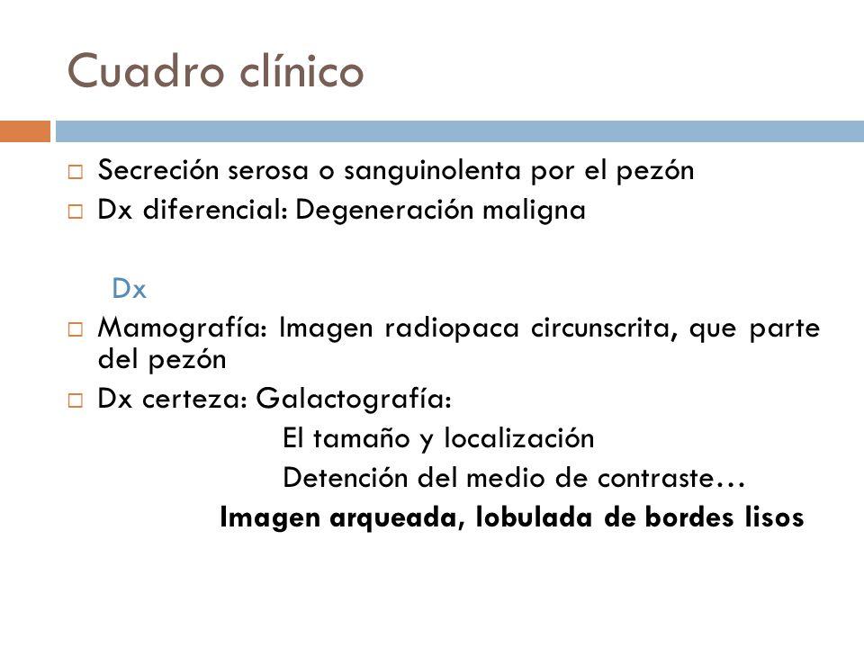 Cuadro clínico Secreción serosa o sanguinolenta por el pezón