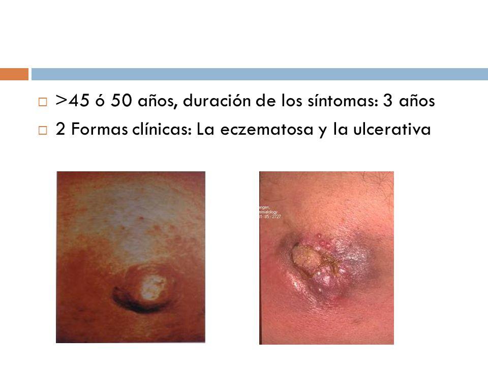 >45 ó 50 años, duración de los síntomas: 3 años