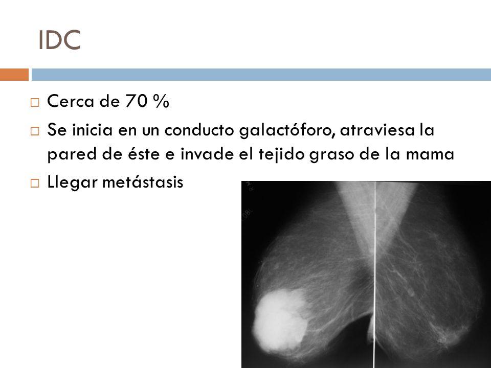 IDC Cerca de 70 % Se inicia en un conducto galactóforo, atraviesa la pared de éste e invade el tejido graso de la mama.
