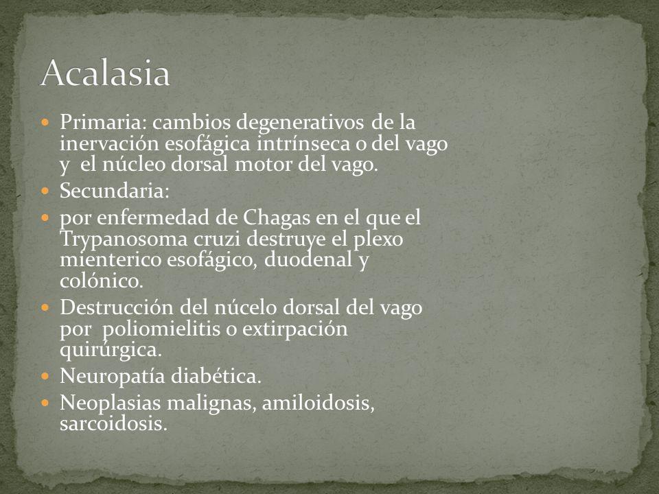 Acalasia Primaria: cambios degenerativos de la inervación esofágica intrínseca o del vago y el núcleo dorsal motor del vago.